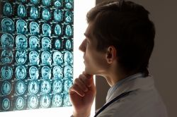 I-Mab Teams up With Genexine to Treat Brain Cancer